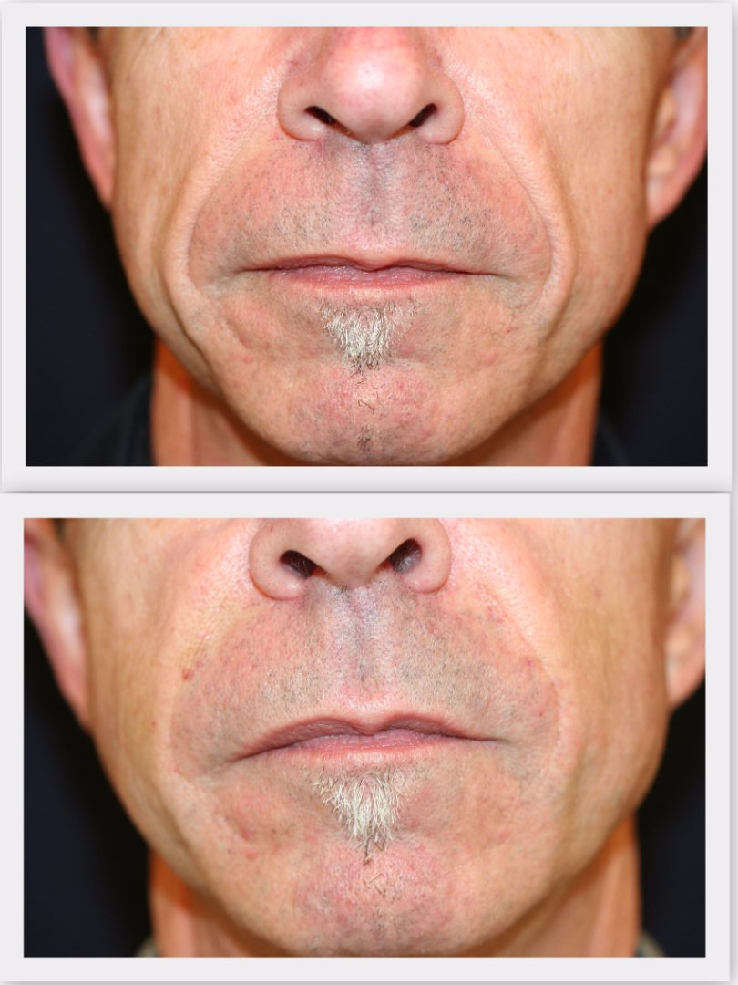 Filler nasolabial fold Dr. Nelissen - Global Care Clinic