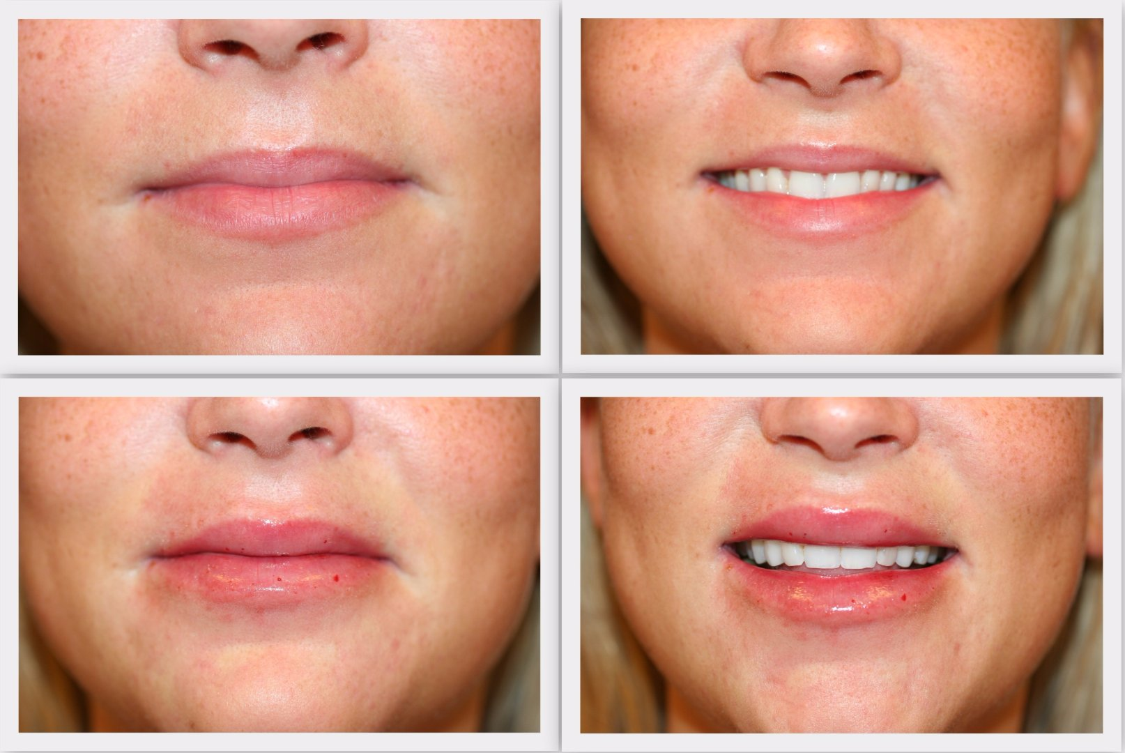 Filler lips Dr. Nelissen - Global Care Clinic