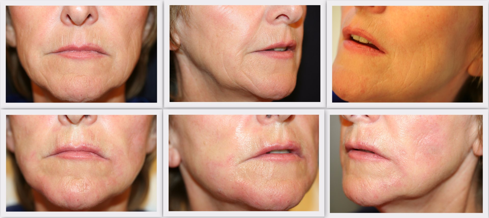 Filler cheeks Dr. Nelissen - Global Care Clinic