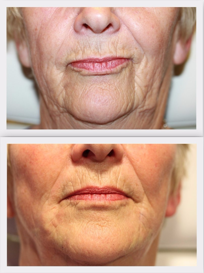 Filler perioral Dr. Nelissen - Global Care Clinic