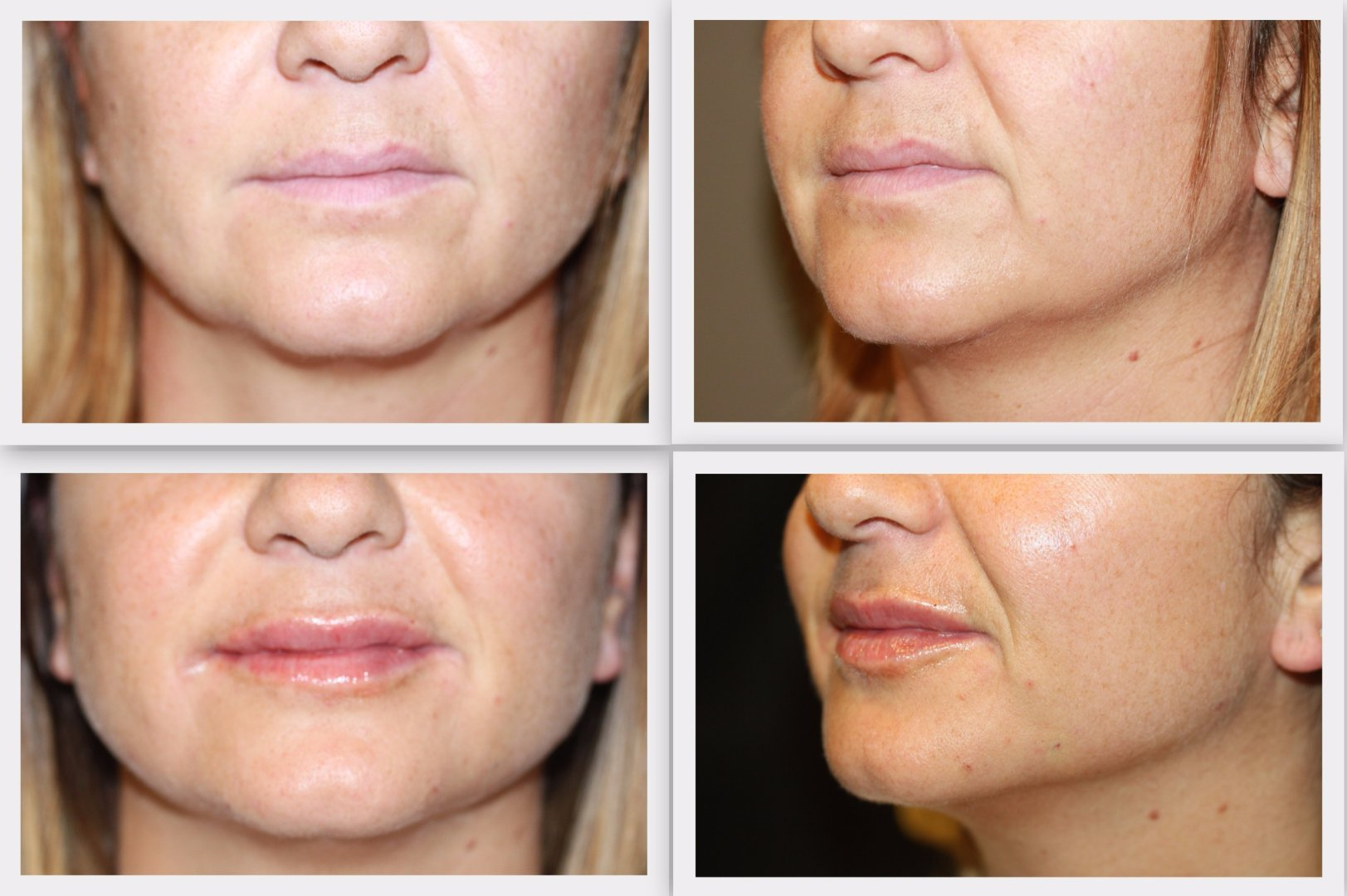 Filler jawline Dr. Nelissen - Global Care Clinic