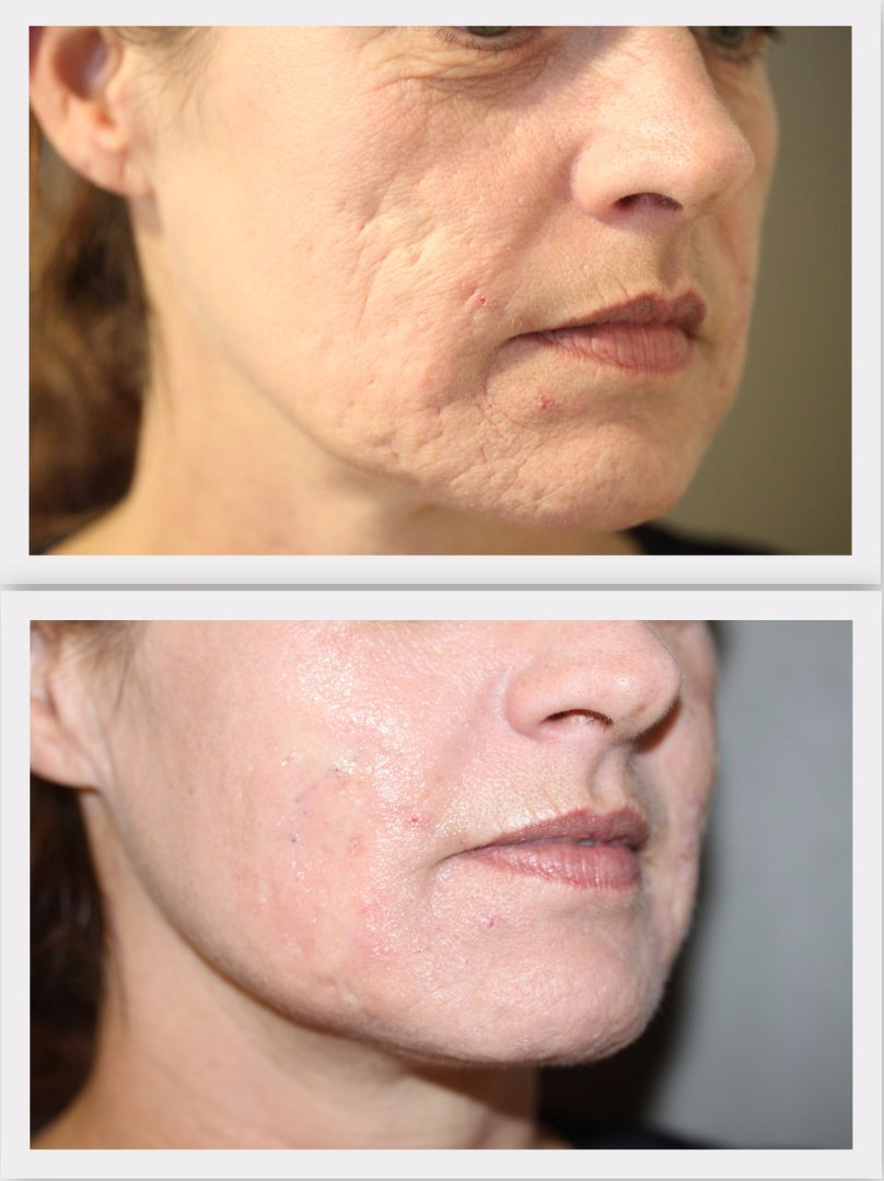Filler acné scars Dr. Nelissen - Global Care Clinic