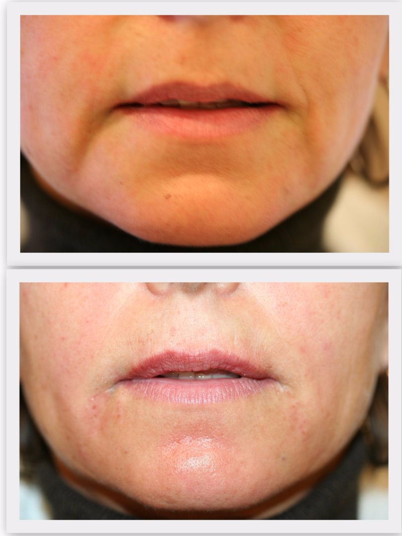 Filler marionette lines Dr. Nelissen - Global Care Clinic