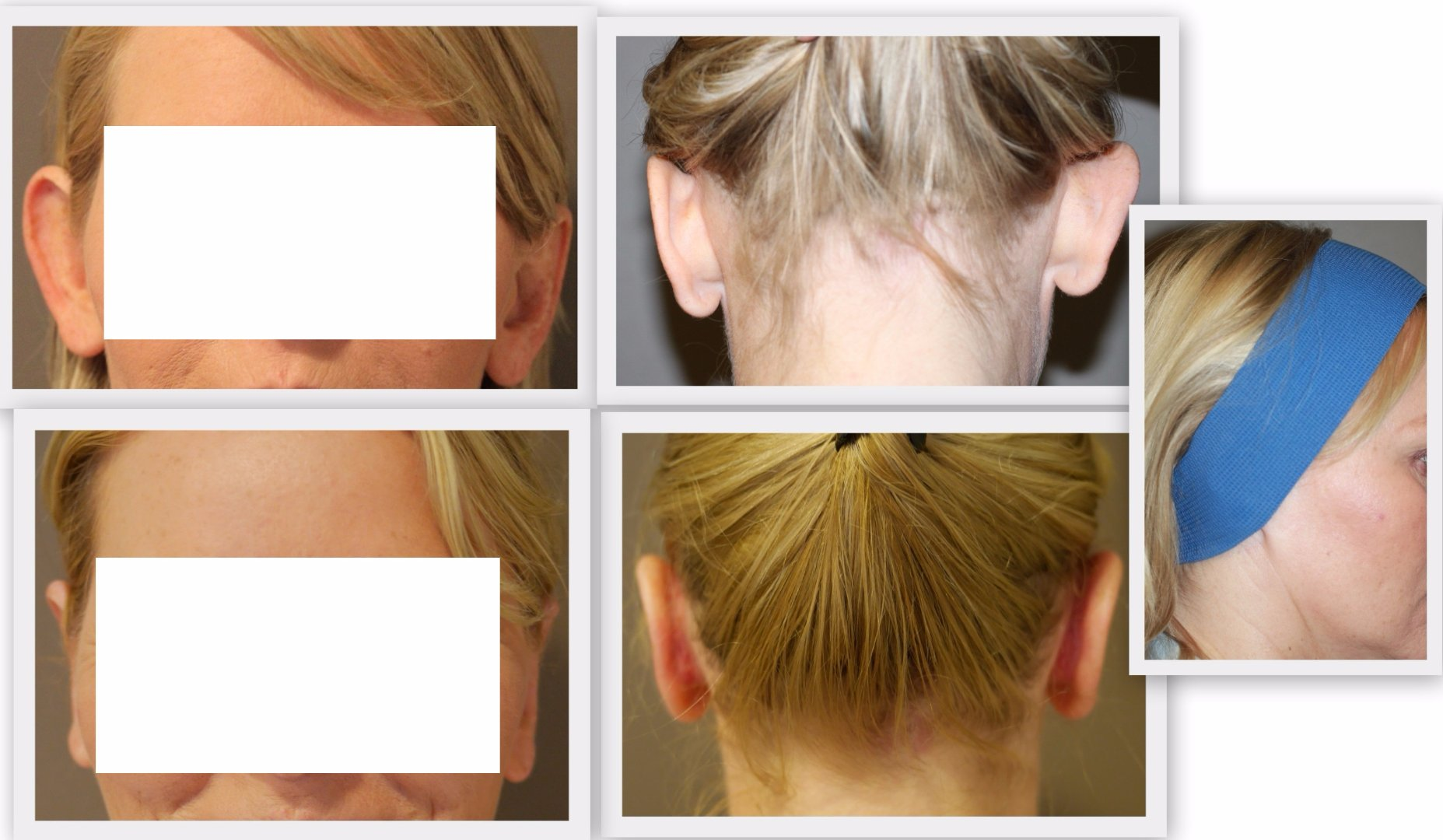 Ear correction Dr. Nelissen - Global Care Clinic