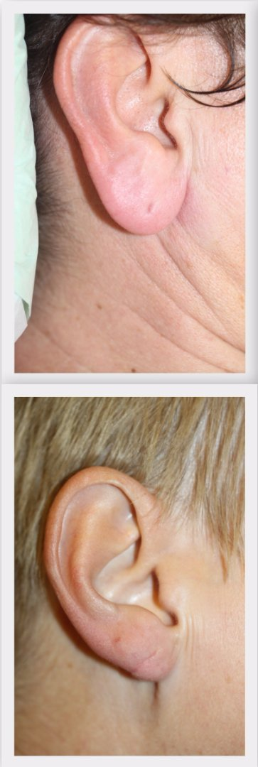 Earlobe reduction Dr. Nelissen - Global Care Clinic