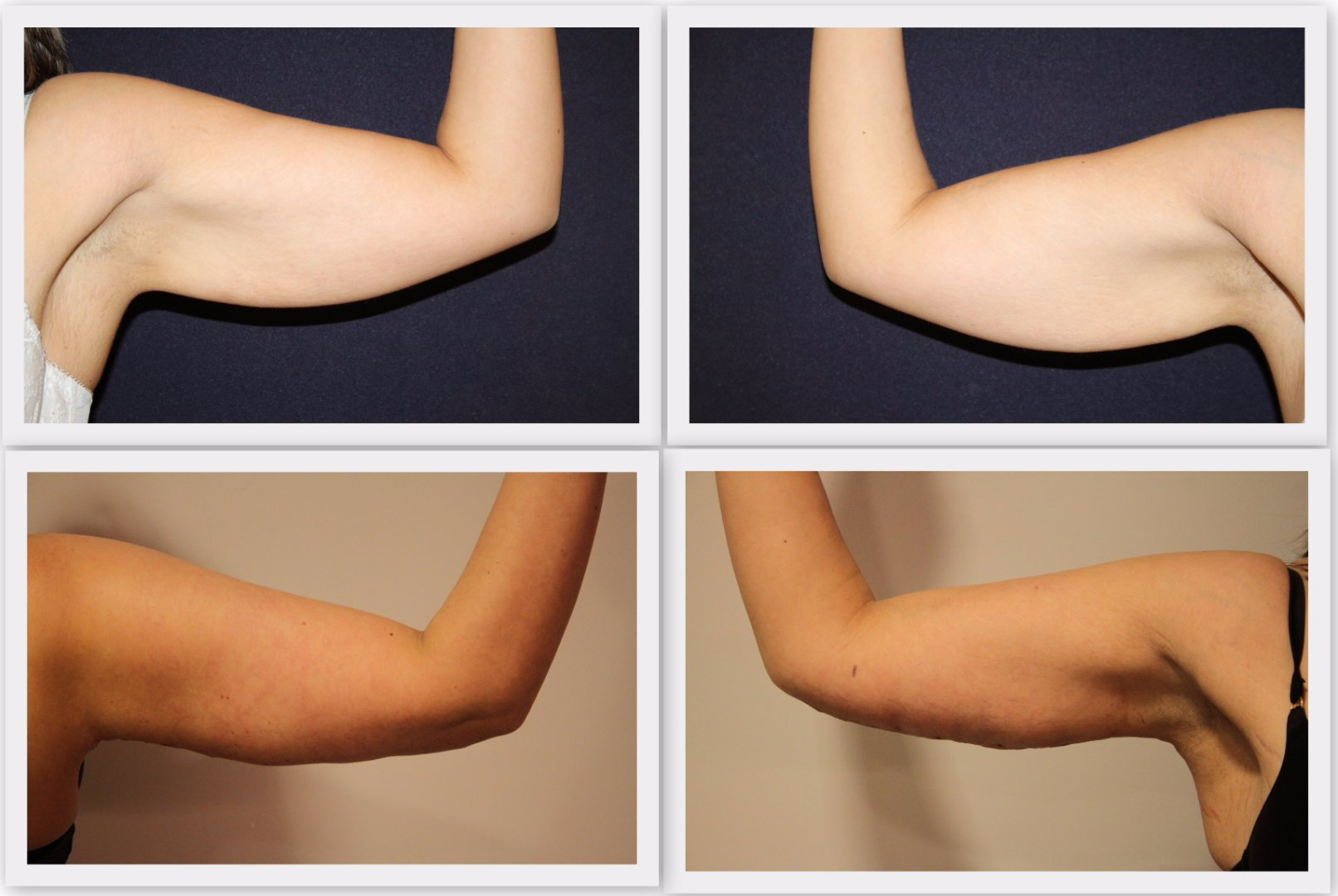 Upper arm correction Dr. Nelissen - Global Care Clinic