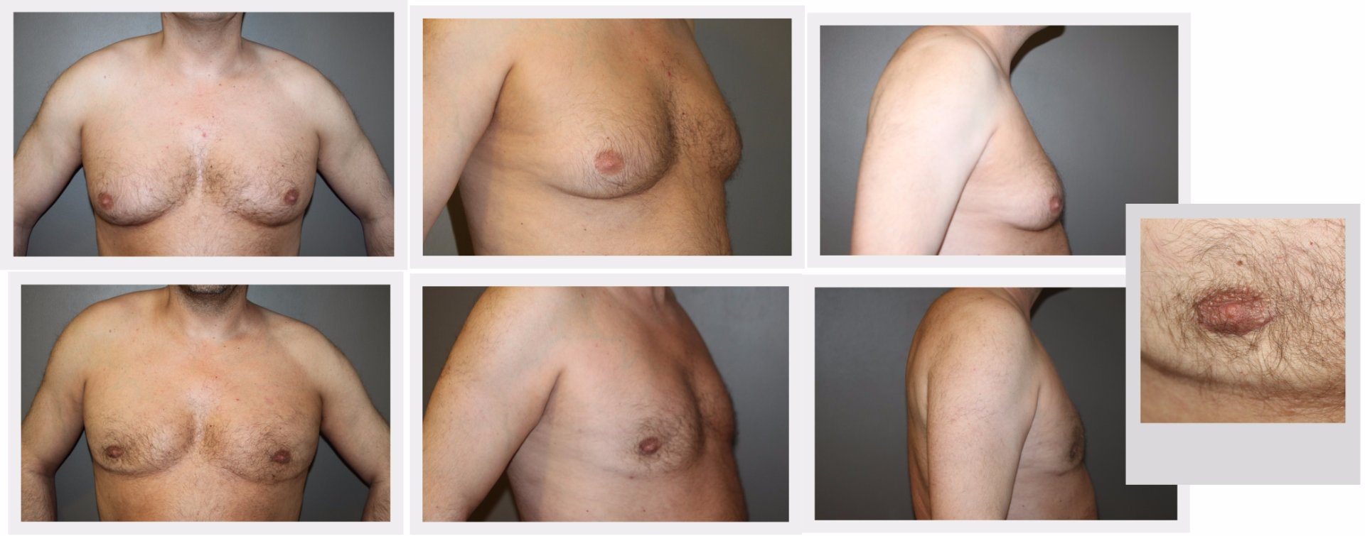 GYNAECOMASTIA (male breast reduction)