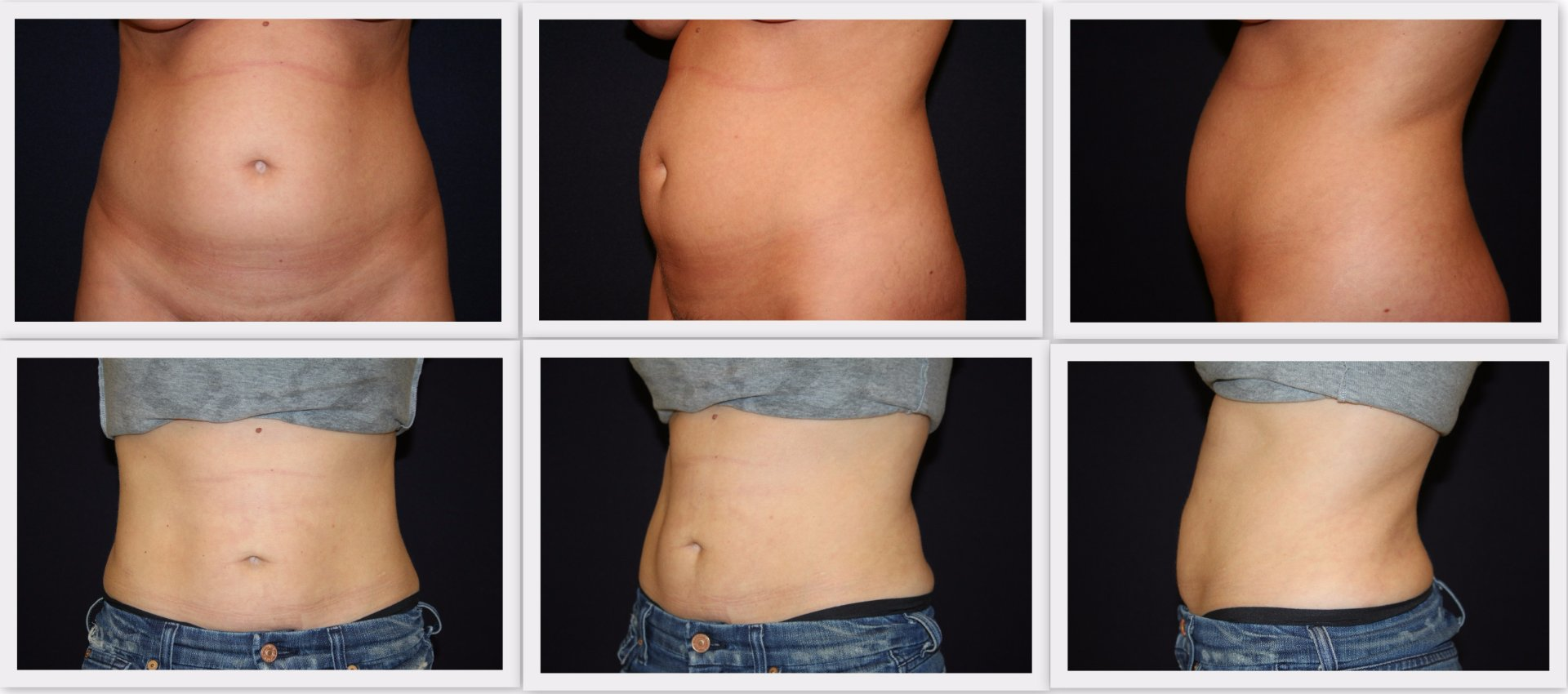 Liposuction tummy Dr. Nelissen - Global Care Clinic