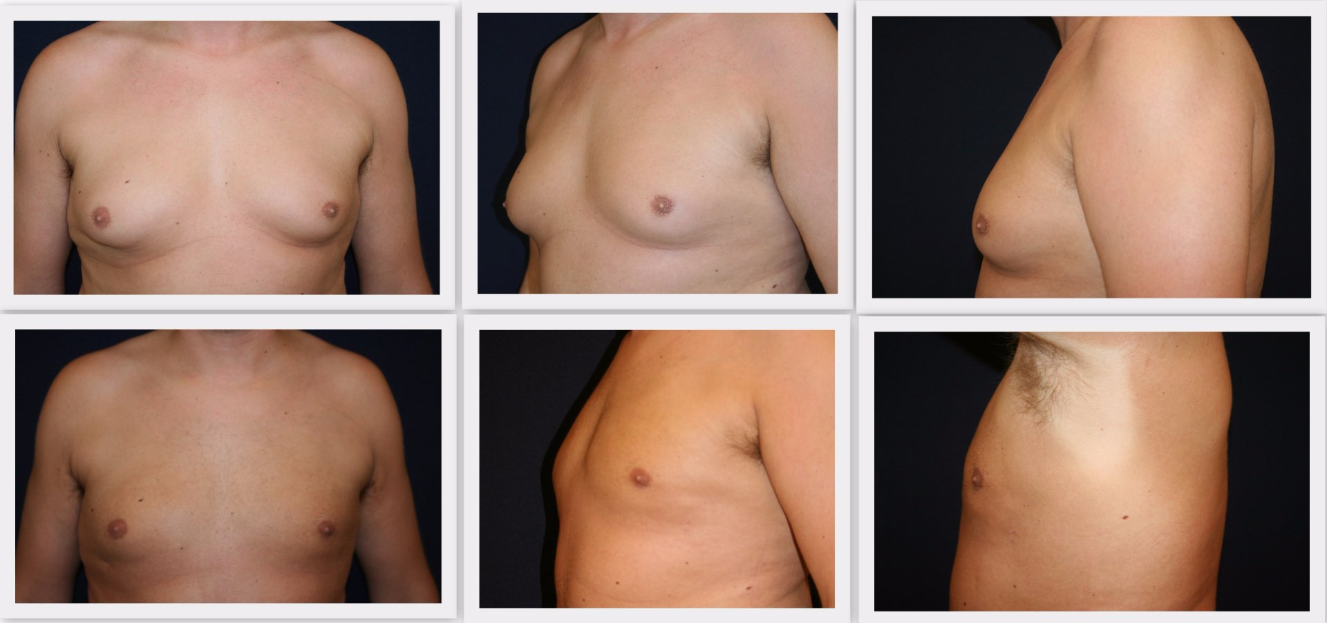 Liposuction breast area man Dr. Nelissen - Global Care Clinic