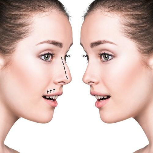 Dünne Nasenoperation
