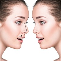 Global Care Clinic ultrasonic nose correction