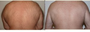 Global Care Clinic laser hair removal before and after