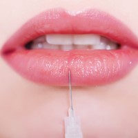 Global Care Clinic lip augmentation